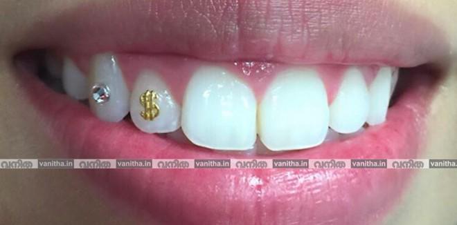 dental-jewel1