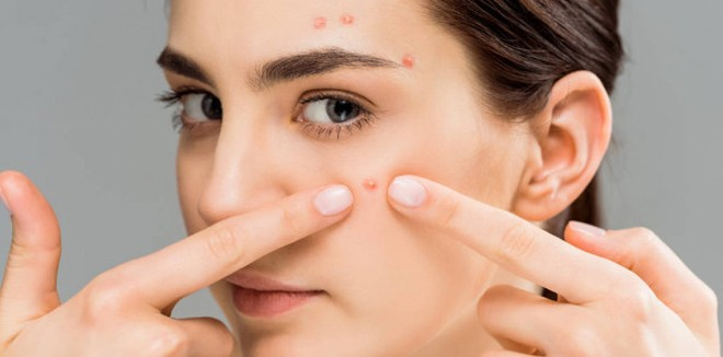 stock-photo-young-woman-acne-touching-face