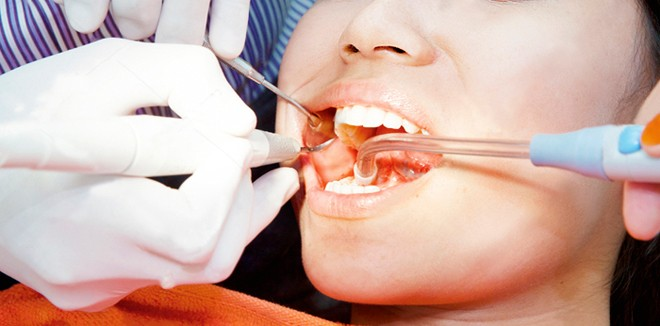 stock-photo-dental-treatment-of-young-asian-woman-at-the-dentist-office-111948680