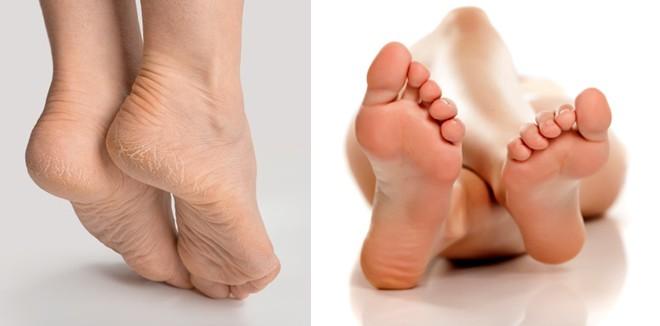 cracked-feet