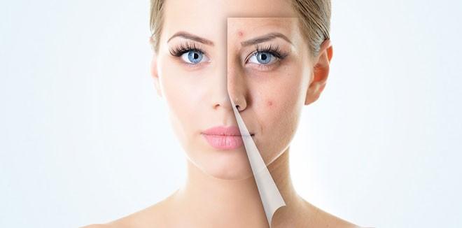 skin-care-pimples